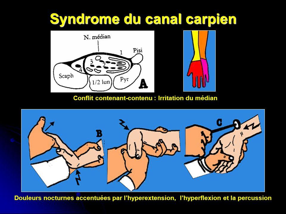 Syndrome du canal carpien Conflit contenant-contenu : Irritation du médian Douleurs nocturnes accentuées par lhyperextension, lhyperflexion et la percussion
