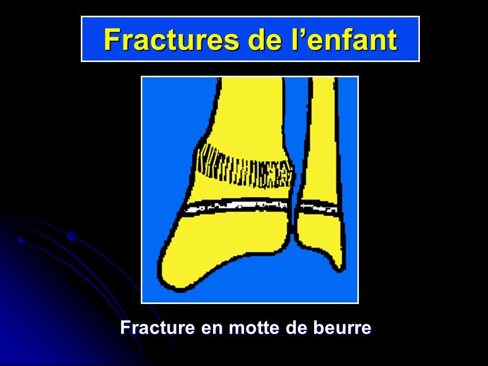 Fracture en motte de beurre Fractures de lenfant