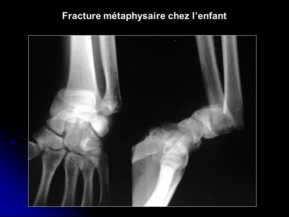 Fracture métaphysaire chez lenfant