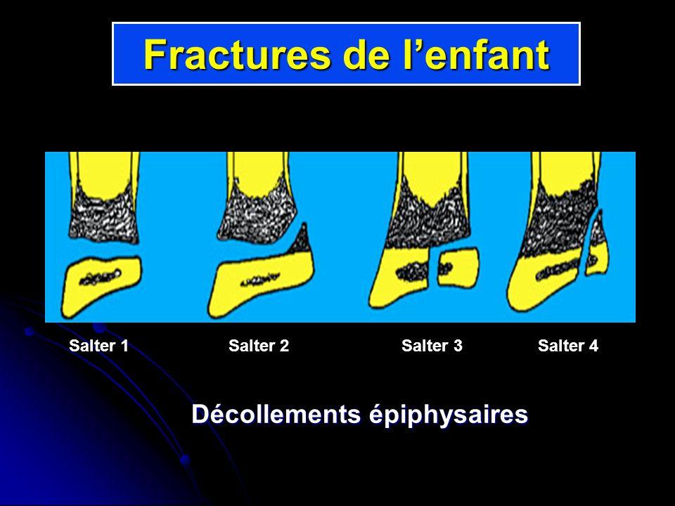 Salter 1 Salter 2 Salter 3 Salter 4 Fractures de lenfant Décollements épiphysaires