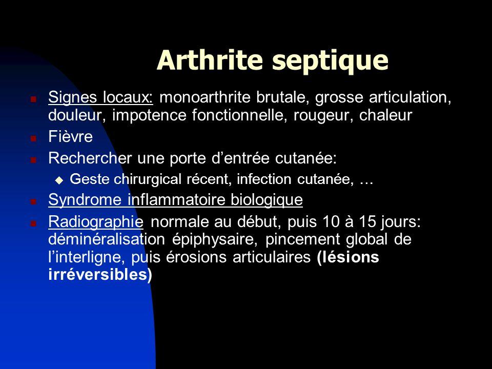 Arthrite septique Signes locaux: monoarthrite brutale, grosse articulation, douleur, impotence fonctionnelle, rougeur, chaleur Fièvre Rechercher une p