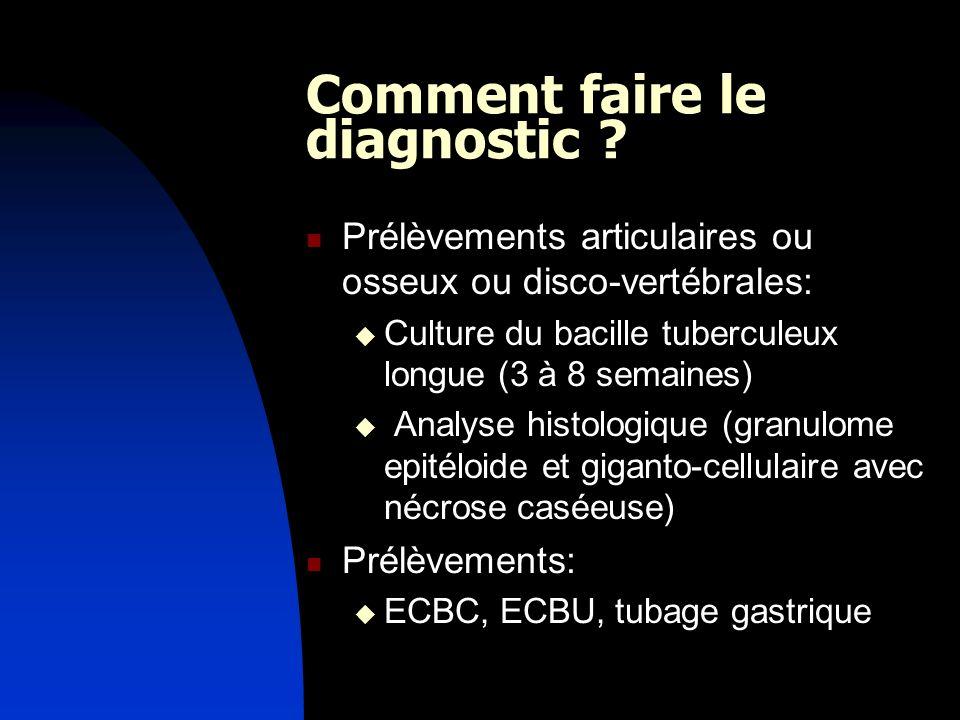 Comment faire le diagnostic ? Prélèvements articulaires ou osseux ou disco-vertébrales: Culture du bacille tuberculeux longue (3 à 8 semaines) Analyse