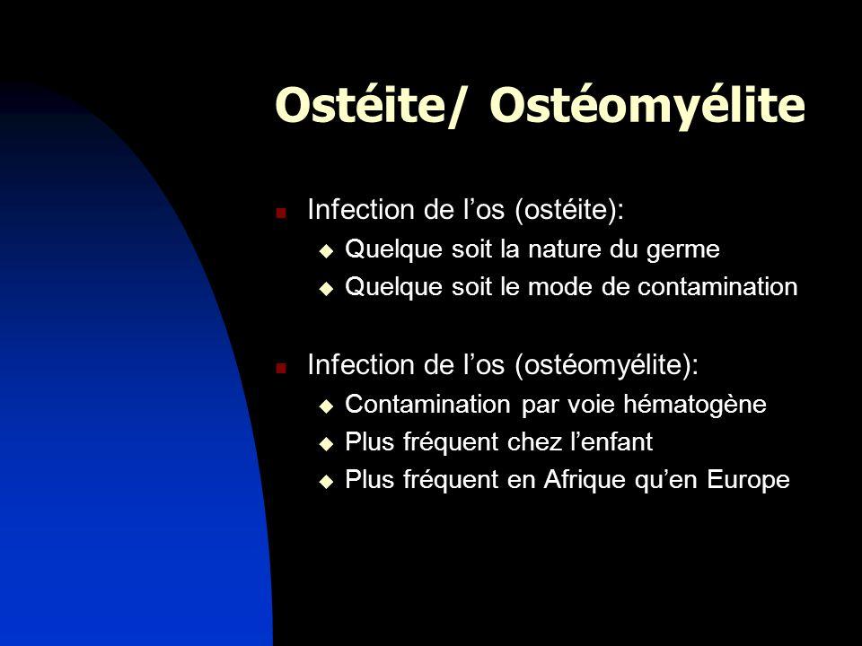 Ostéite/ Ostéomyélite Infection de los (ostéite): Quelque soit la nature du germe Quelque soit le mode de contamination Infection de los (ostéomyélite