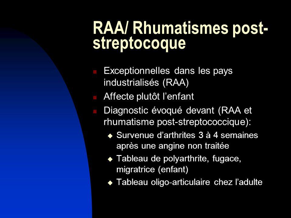 RAA/ Rhumatismes post- streptocoque Exceptionnelles dans les pays industrialisés (RAA) Affecte plutôt lenfant Diagnostic évoqué devant (RAA et rhumati