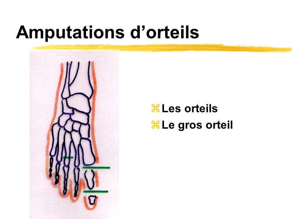 Amputations dorteils zLes orteils zLe gros orteil