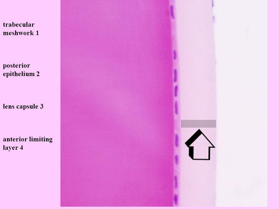 Q338.jpg trabecular meshwork 1 posterior epithelium 2 lens capsule 3 anterior limiting layer 4