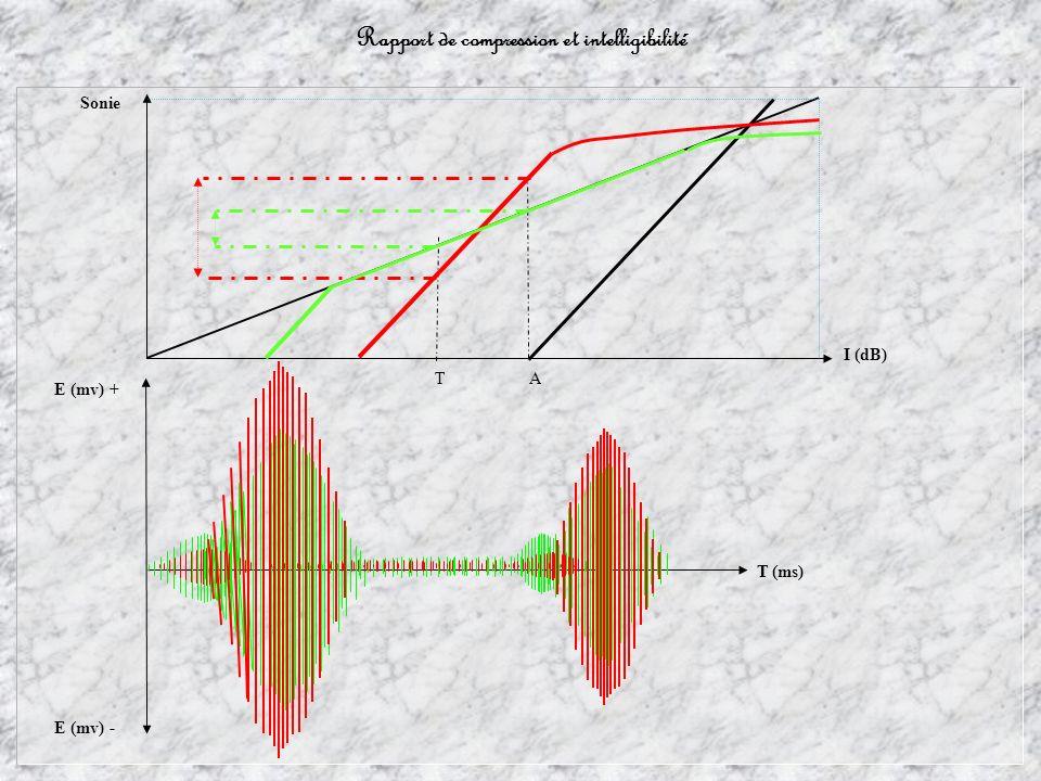 T A T (ms) I (dB) Sonie E (mv) + E (mv) -