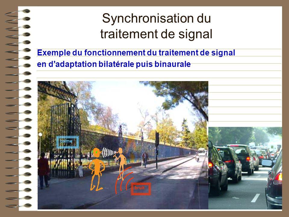 Exemple du fonctionnement du traitement de signal en d'adaptation bilatérale puis binaurale bruit calme Synchronisation du traitement de signal