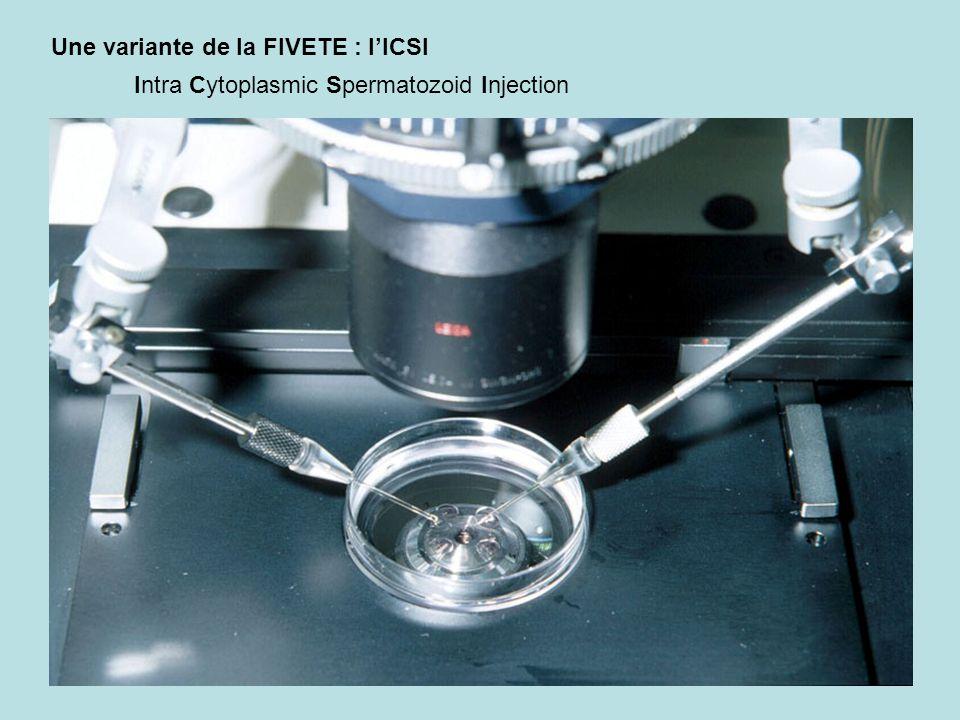 Une variante de la FIVETE : lICSI Intra Cytoplasmic Spermatozoid Injection