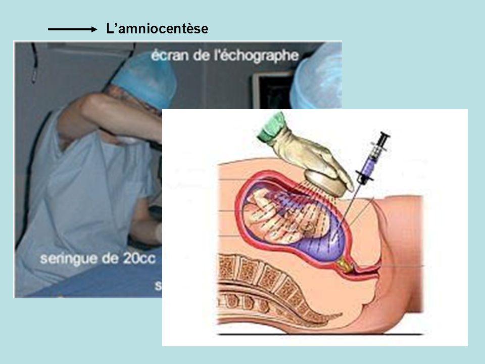 Lamniocentèse