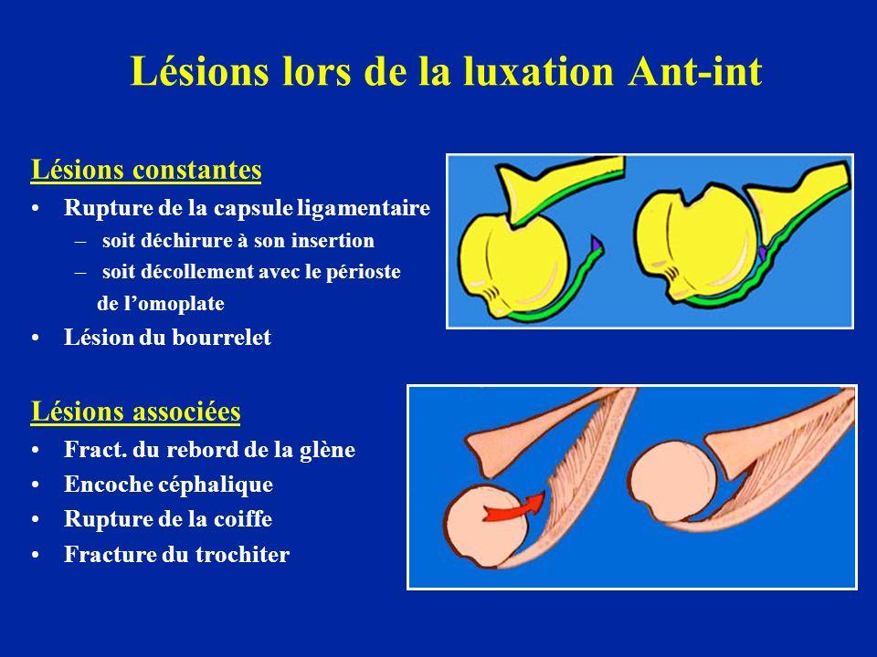Lésions lors de la luxation Ant-int Lésions constantes Rupture de la capsule ligamentaire –soit déchirure à son insertion –soit décollement avec le pé