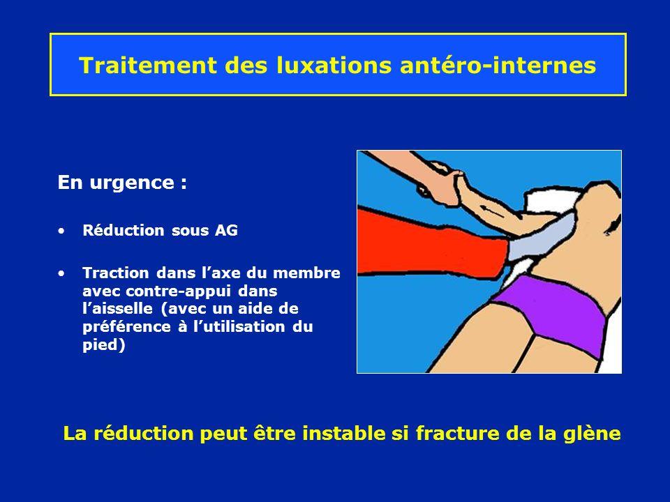 Traitement des luxations antéro-internes En urgence : Réduction sous AG Traction dans laxe du membre avec contre-appui dans laisselle (avec un aide de