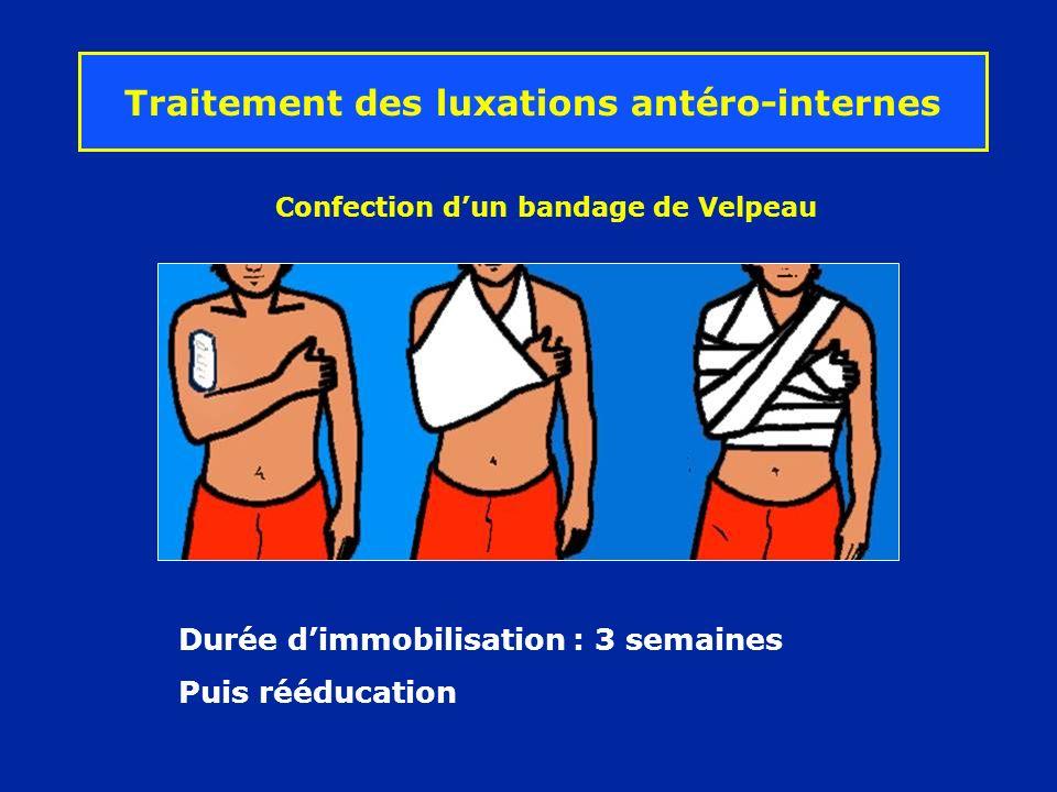 Durée dimmobilisation : 3 semaines Puis rééducation Traitement des luxations antéro-internes Confection dun bandage de Velpeau