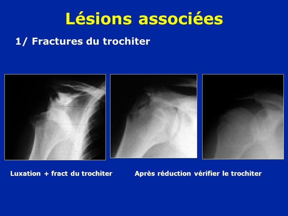 1/ Fractures du trochiter Luxation + fract du trochiter Après réduction vérifier le trochiter