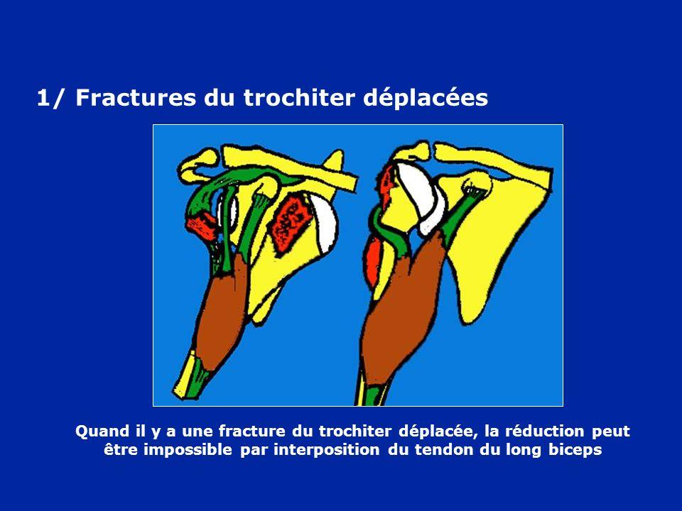 Quand il y a une fracture du trochiter déplacée, la réduction peut être impossible par interposition du tendon du long biceps 1/ Fractures du trochite