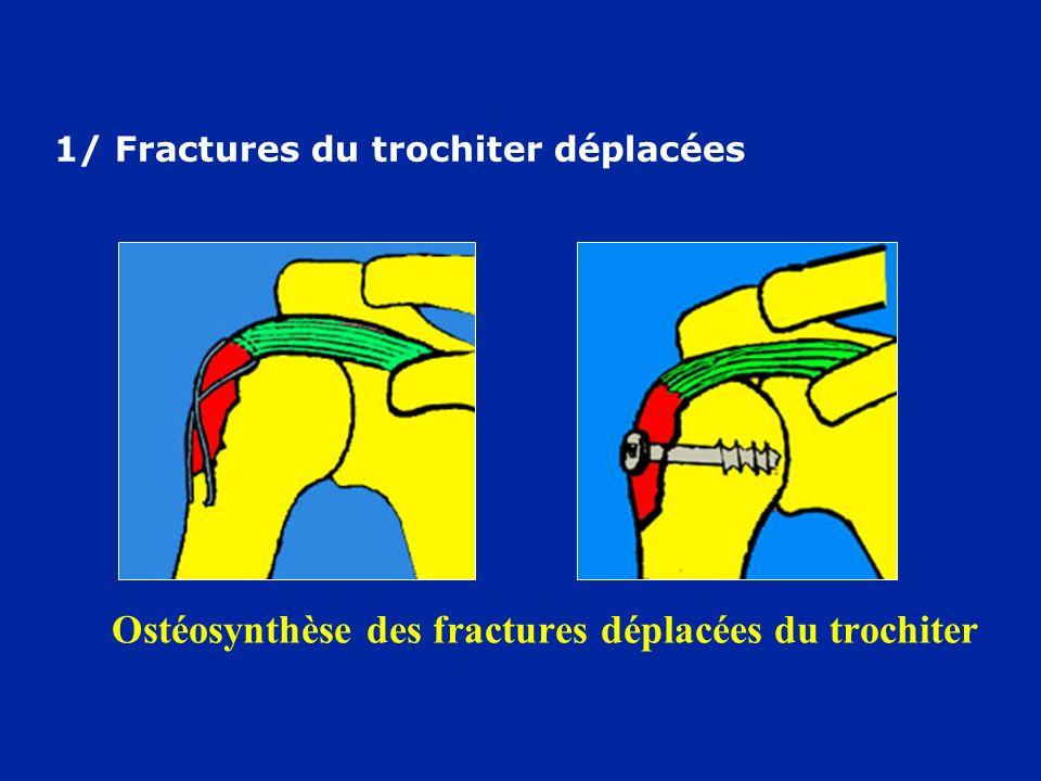 Ostéosynthèse des fractures déplacées du trochiter 1/ Fractures du trochiter déplacées