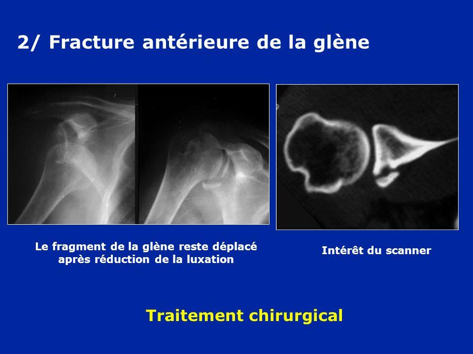 2/ Fracture antérieure de la glène Intérêt du scanner Le fragment de la glène reste déplacé après réduction de la luxation Traitement chirurgical