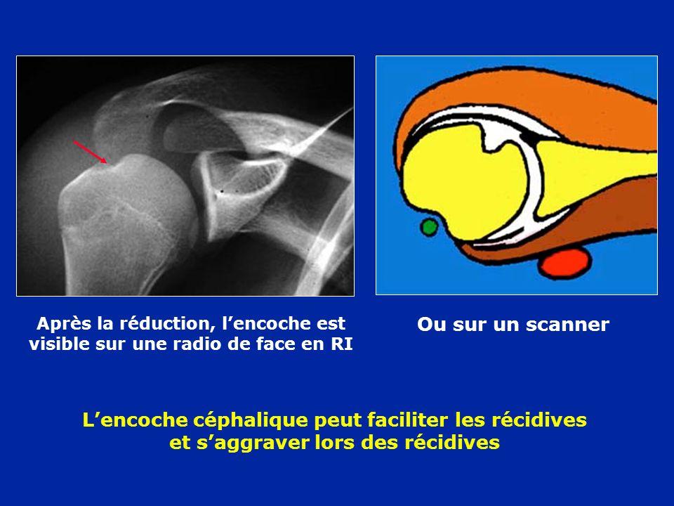 Après la réduction, lencoche est visible sur une radio de face en RI Ou sur un scanner Lencoche céphalique peut faciliter les récidives et saggraver l