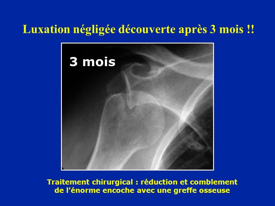 Luxation négligée découverte après 3 mois !! 3 mois Traitement chirurgical : réduction et comblement de lénorme encoche avec une greffe osseuse