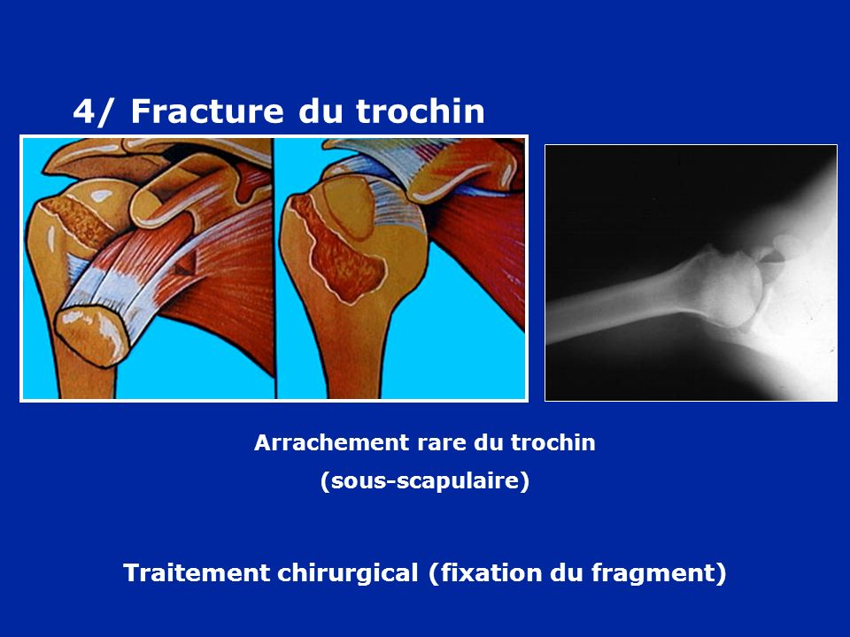 4/ Fracture du trochin Arrachement rare du trochin (sous-scapulaire) Traitement chirurgical (fixation du fragment)