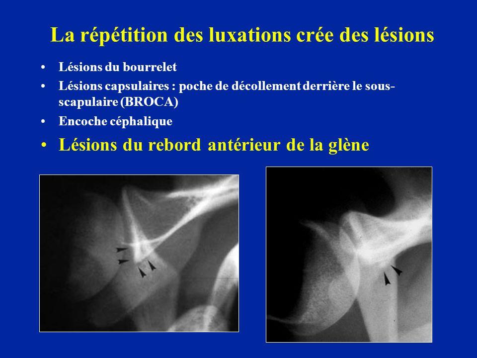 La répétition des luxations crée des lésions Lésions du bourrelet Lésions capsulaires : poche de décollement derrière le sous- scapulaire (BROCA) Enco
