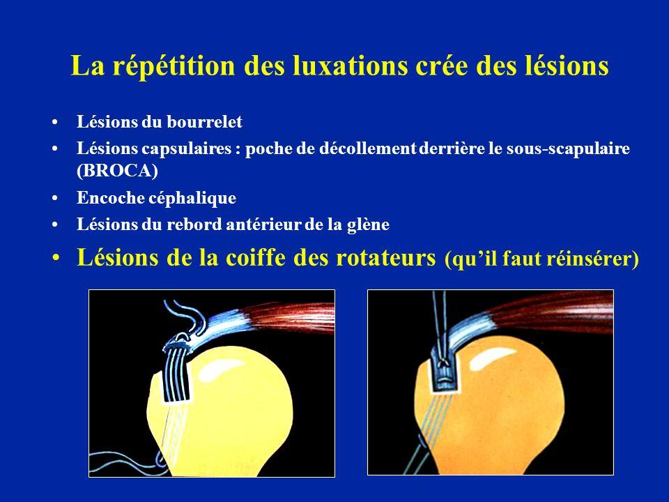 La répétition des luxations crée des lésions Lésions du bourrelet Lésions capsulaires : poche de décollement derrière le sous-scapulaire (BROCA) Encoc