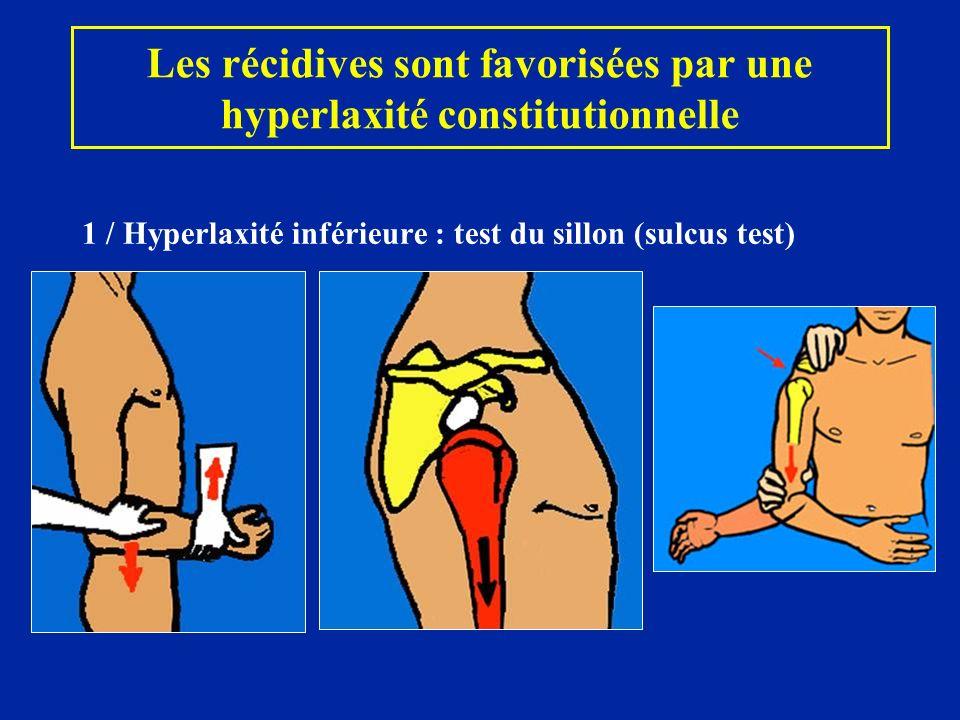 Les récidives sont favorisées par une hyperlaxité constitutionnelle 1 / Hyperlaxité inférieure : test du sillon (sulcus test)