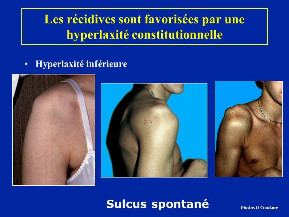 Les récidives sont favorisées par une hyperlaxité constitutionnelle Hyperlaxité inférieure Sulcus spontané Photos H Coudane