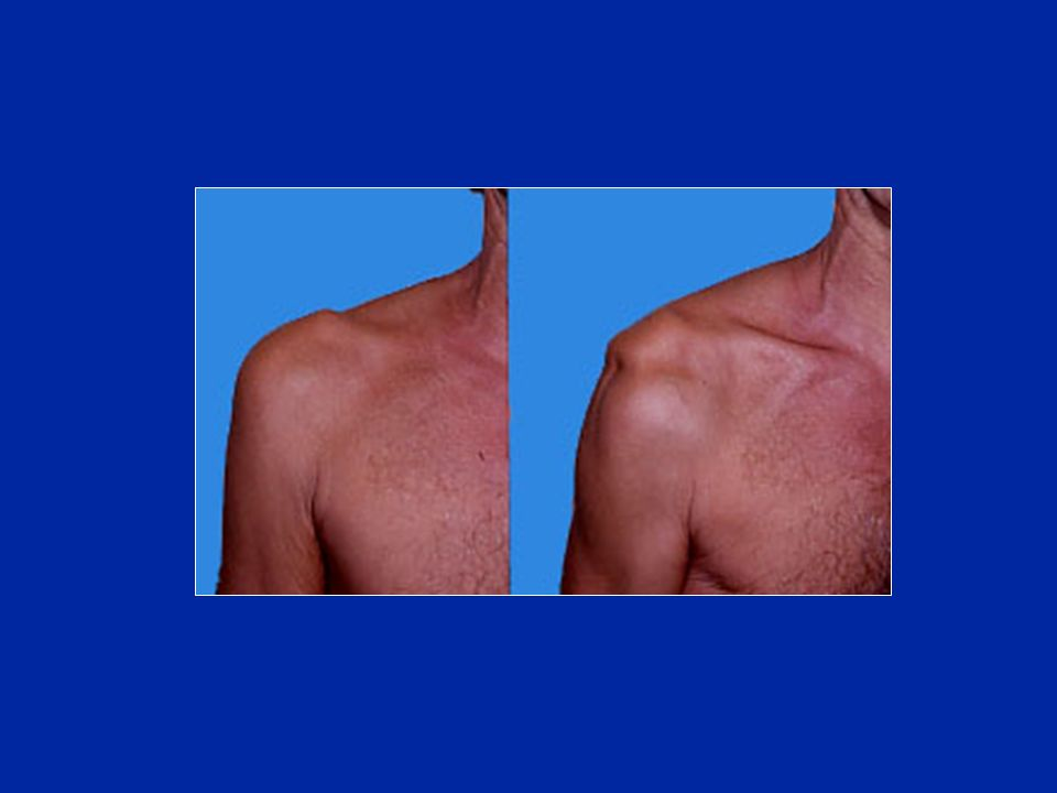 Les récidives sont favorisées par une hyperlaxité constitutionnelle 1 / Hyperlaxité inférieure : test du sillon (sulcus test) 2 / Laxité antéro-postérieure : tiroir