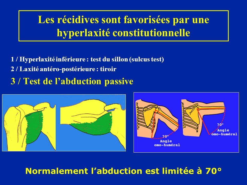 1 / Hyperlaxité inférieure : test du sillon (sulcus test) 2 / Laxité antéro-postérieure : tiroir 3 / Test de labduction passive Normalement labduction