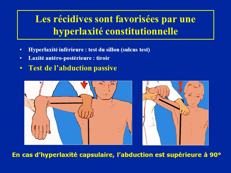 Hyperlaxité inférieure : test du sillon (sulcus test) Laxité antéro-postérieure : tiroir Test de labduction passive En cas dhyperlaxité capsulaire, la