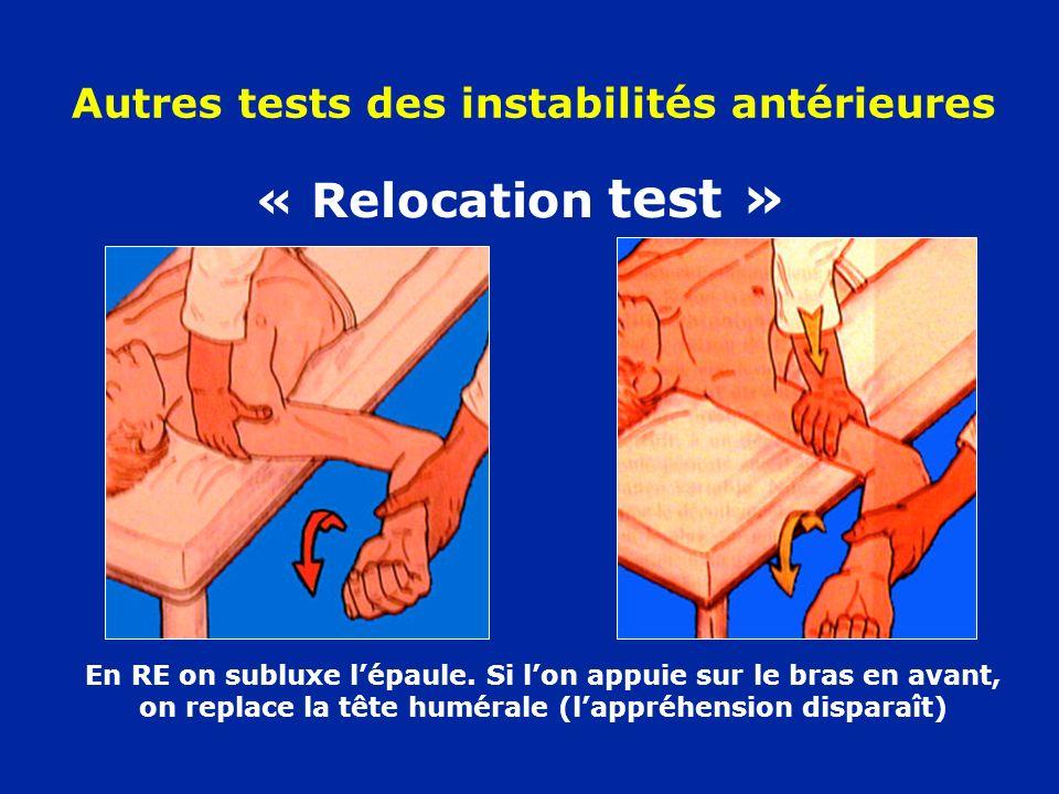 Autres tests des instabilités antérieures « Relocation test » En RE on subluxe lépaule. Si lon appuie sur le bras en avant, on replace la tête huméral