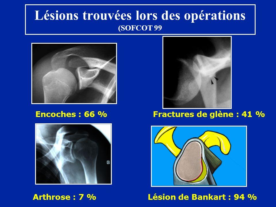 Lésions trouvées lors des opérations (SOFCOT 99 Encoches : 66 % Fractures de glène : 41 % Arthrose : 7 %Lésion de Bankart : 94 %