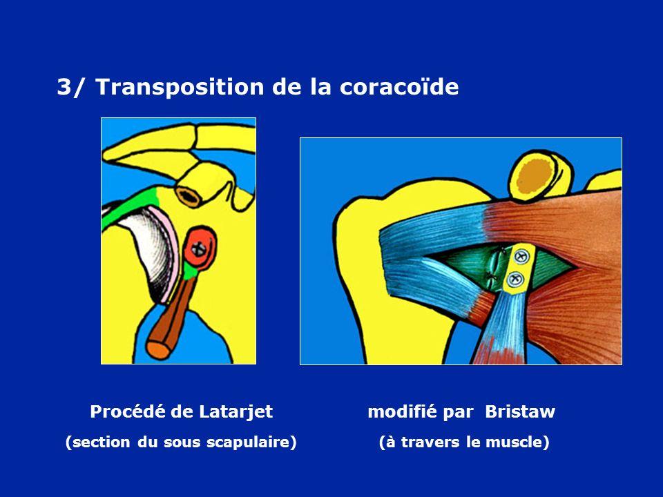 3/ Transposition de la coracoïde Procédé de Latarjet modifié par Bristaw (section du sous scapulaire) (à travers le muscle)