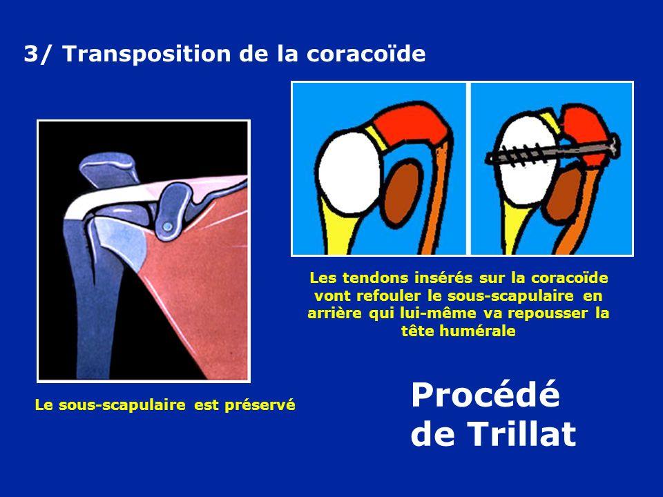 Procédé de Trillat 3/ Transposition de la coracoïde Le sous-scapulaire est préservé Les tendons insérés sur la coracoïde vont refouler le sous-scapula