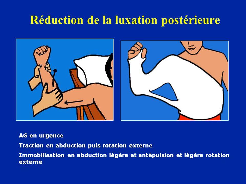 Réduction de la luxation postérieure AG en urgence Traction en abduction puis rotation externe Immobilisation en abduction légère et antépulsion et lé