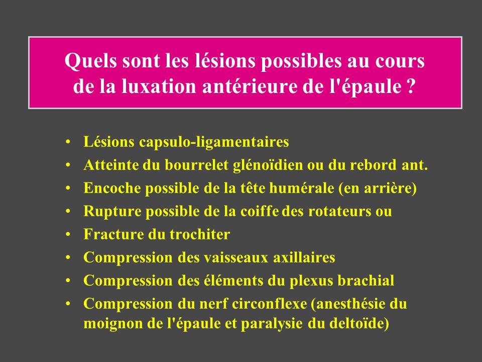 Quels sont les lésions possibles au cours de la luxation antérieure de l'épaule ? Lésions capsulo-ligamentaires Atteinte du bourrelet glénoïdien ou du