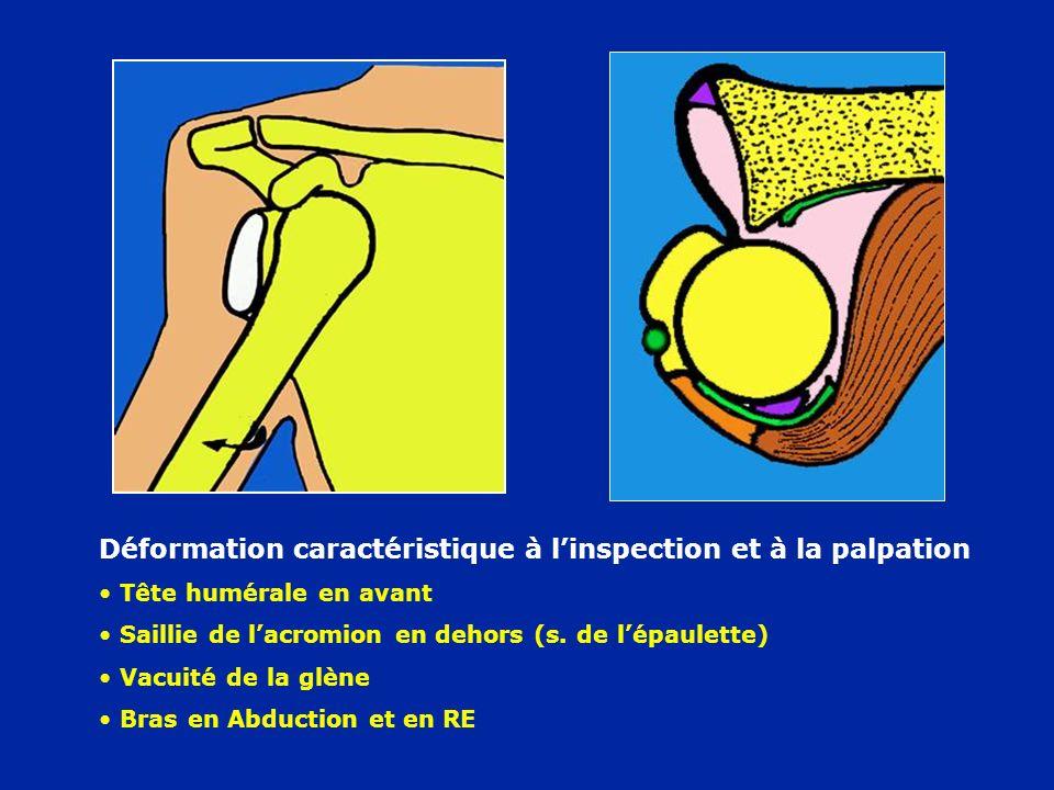 Déformation caractéristique à linspection et à la palpation Tête humérale en avant Saillie de lacromion en dehors (s. de lépaulette) Vacuité de la glè