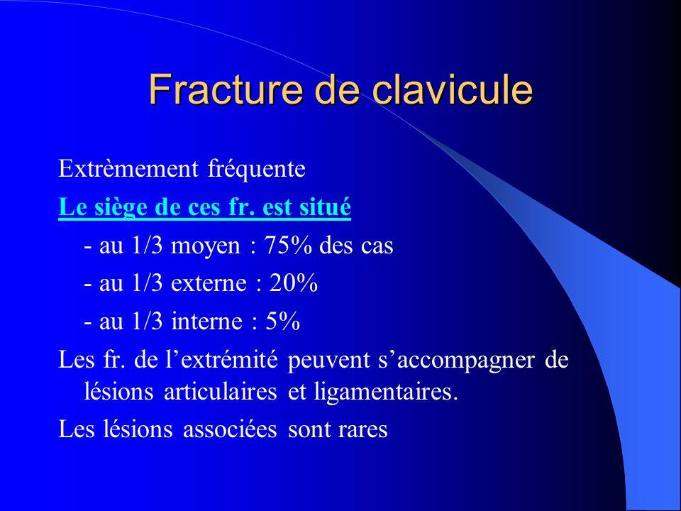 Extrèmement fréquente Le siège de ces fr. est situé - au 1/3 moyen : 75% des cas - au 1/3 externe : 20% - au 1/3 interne : 5% Les fr. de lextrémité pe