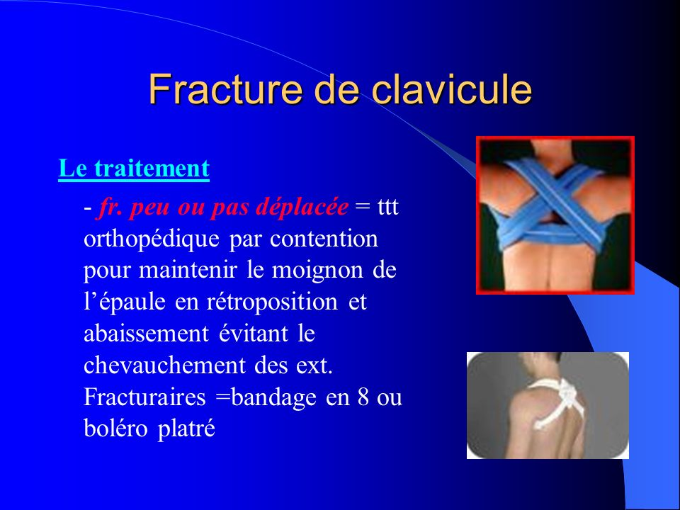 Fracture de clavicule Le traitement - fr. peu ou pas déplacée = ttt orthopédique par contention pour maintenir le moignon de lépaule en rétroposition