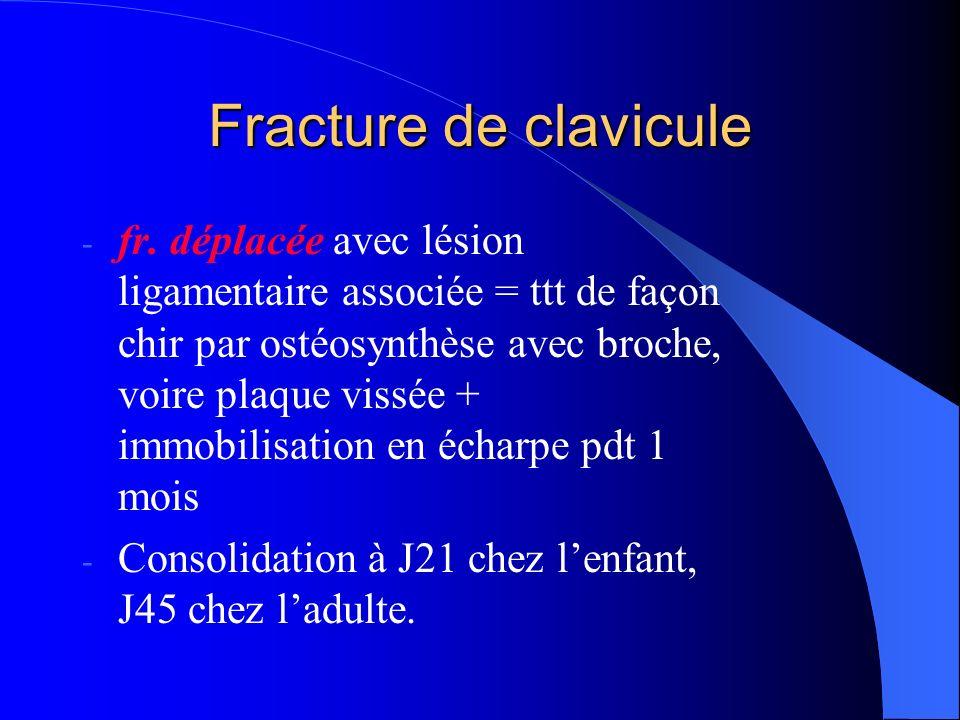 Fracture de clavicule - fr. déplacée avec lésion ligamentaire associée = ttt de façon chir par ostéosynthèse avec broche, voire plaque vissée + immobi