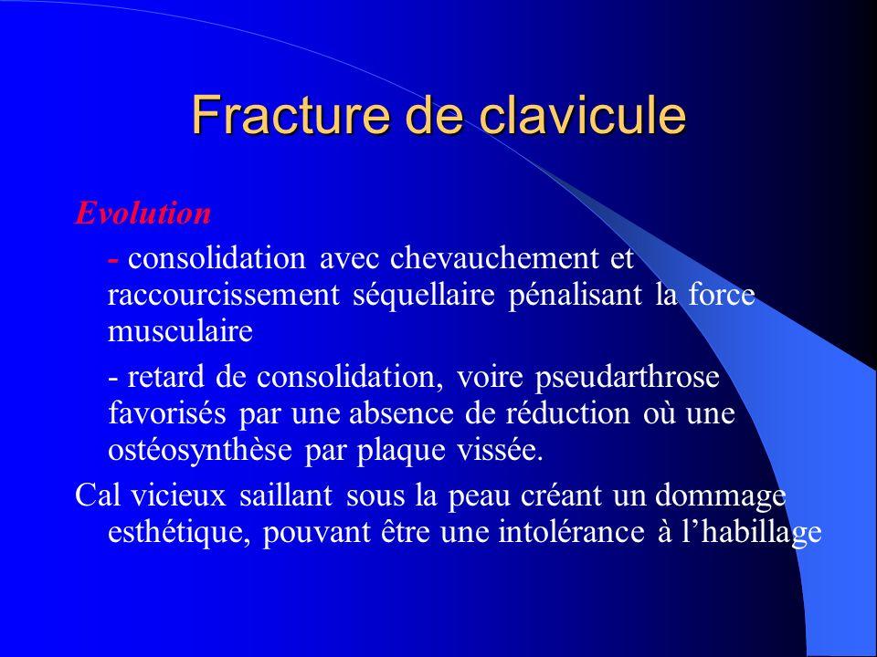 Evolution - consolidation avec chevauchement et raccourcissement séquellaire pénalisant la force musculaire - retard de consolidation, voire pseudarth
