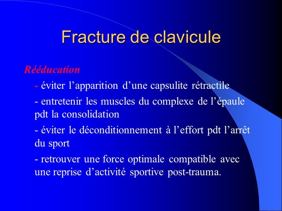 Fracture de clavicule Rééducation - éviter lapparition dune capsulite rétractile - entretenir les muscles du complexe de lépaule pdt la consolidation