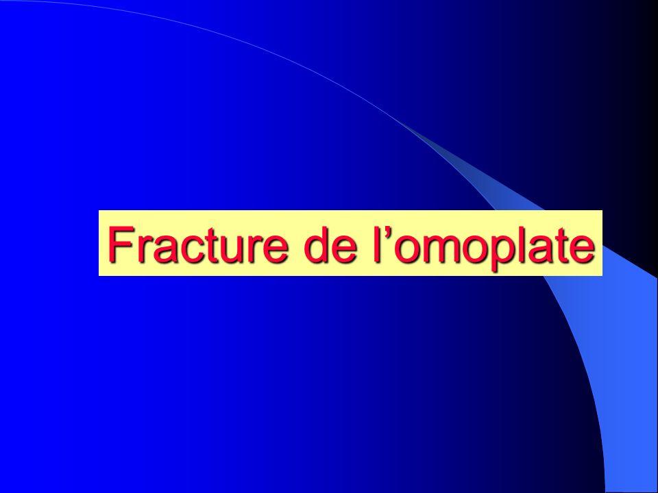 Fracture de lomoplate