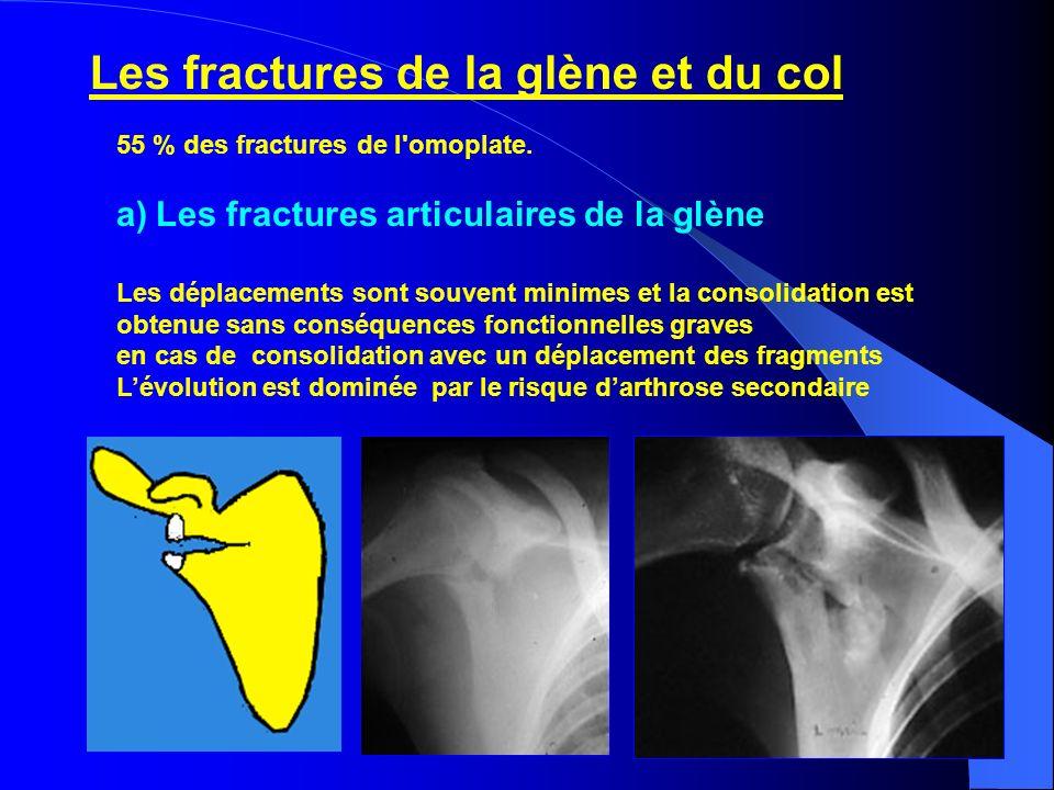 55 % des fractures de l'omoplate. a)Les fractures articulaires de la glène Les déplacements sont souvent minimes et la consolidation est obtenue sans