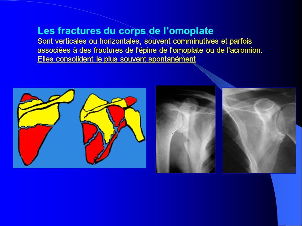 Les fractures du corps de l'omoplate Sont verticales ou horizontales, souvent comminutives et parfois associées à des fractures de l'épine de l'omopla
