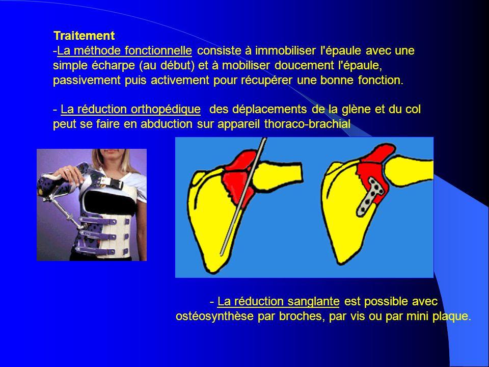 Traitement -La méthode fonctionnelle consiste à immobiliser l'épaule avec une simple écharpe (au début) et à mobiliser doucement l'épaule, passivement