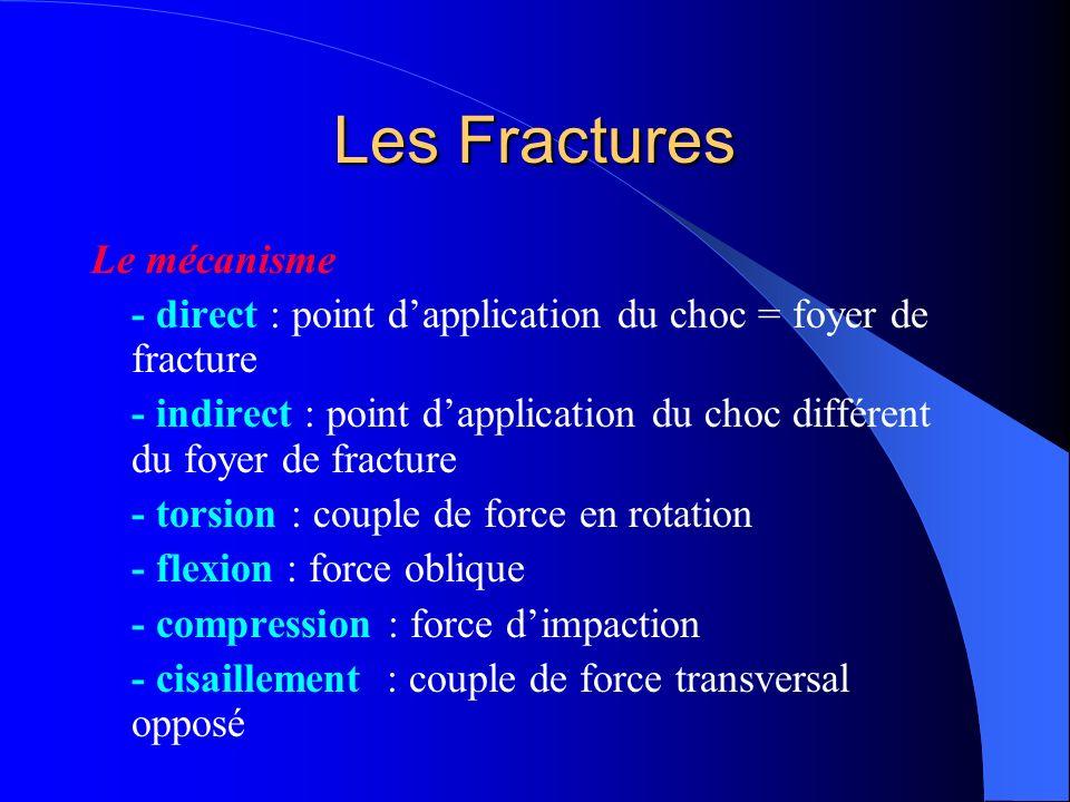 Les Fractures Le mécanisme - direct : point dapplication du choc = foyer de fracture - indirect : point dapplication du choc différent du foyer de fra