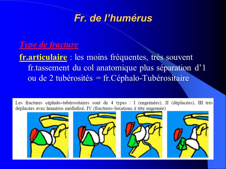 Type de fracture fr.articulaire : les moins fréquentes, très souvent fr.tassement du col anatomique plus séparation d1 ou de 2 tubérosités = fr.Céphal