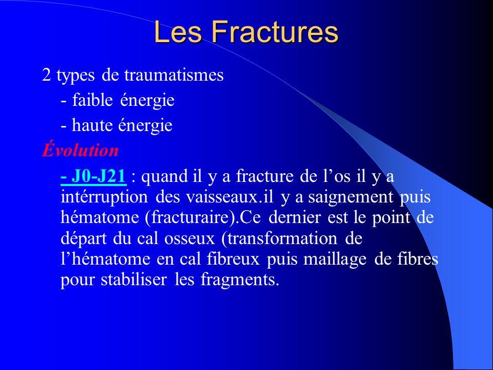 Les Fractures - J21-J45-60 : transformation du cal fibreux en cal osseux primaire ou primitif - J45-60-M18 : reconstitution du cal primaire en cal secondaire puis tertiaire, puis définitif - Pseudarthrose = absence de consolidation dans les délais normaux (6 mois).